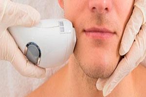 Лазерный эпилятор для мужчин